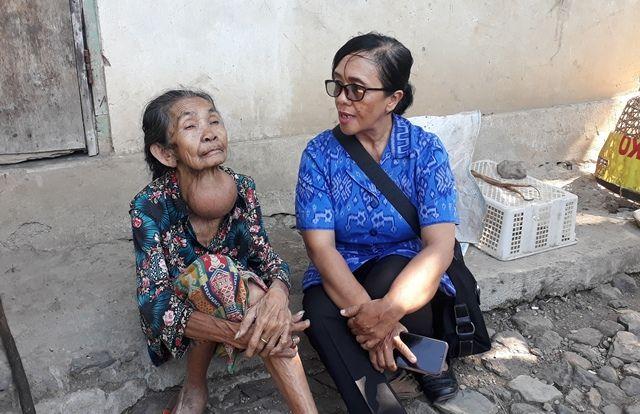 Derita Dadong Puspa, Hidup Sendiri, Derita Penyakit Gondok