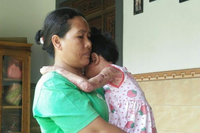 Akibat Pernikahan Sedarah, Sekujur Tubuh Anak Mengelupas