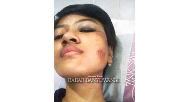 TERLUKA: Laura Damartirta Wahyu menjalani perawatan di RS NU Mangir, Kecamatan Rogojampi, kemarin (18/6)