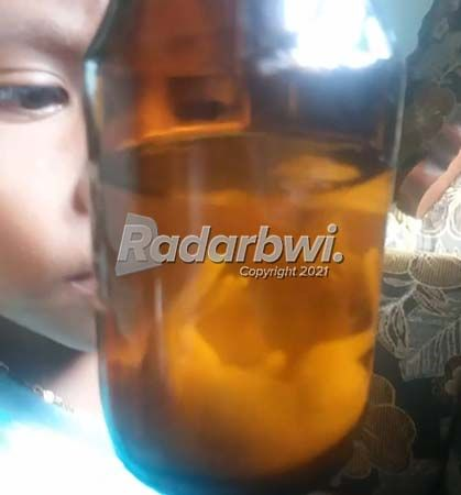 BERKHASIAT: Janin kijang atau jamu Kidang Kencono disimpan dalam botol dengan direndam minuman beralkohol di Desa Kandangan, Kecamatan Pesanggaran, kemarin (9/7).