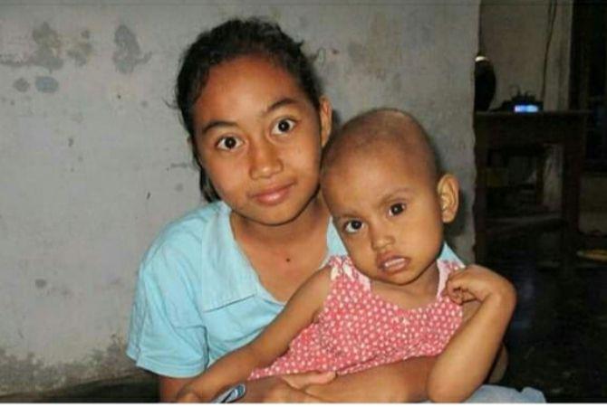 KASIHAN : Fanaya ketika digendong kakaknya terlihat normal, padahal mata sisi kanan sudah menggunakan bola mata palsu. Kini mata kiri terancam setelah terjangkit tumor.