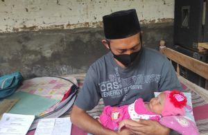 Derita Arsyifa Balqis Nabiha, Bayi yang Terlahir Tanpa Bola Mata