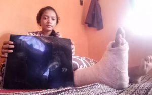 Annisa Fitri Mengaku Jatuh Didorong, Kerap Jadi Sasaran Ejekan Teman