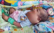 Bayi dari Keluarga Miskin Alami Kelainan Kelenjar Getah Bening