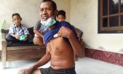 Anjing Positif Rabies Mengamuk, Serang Wajah Tiga Korban di Klungkung