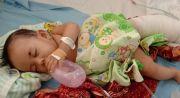 Nur Anisa Maharani, Penderita Lymphangioma, Usai Operasi Perdana